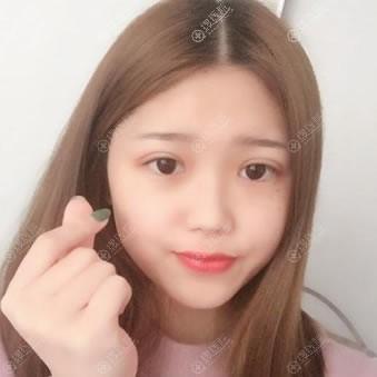 昆山铂特丽陈海朋双眼皮案例