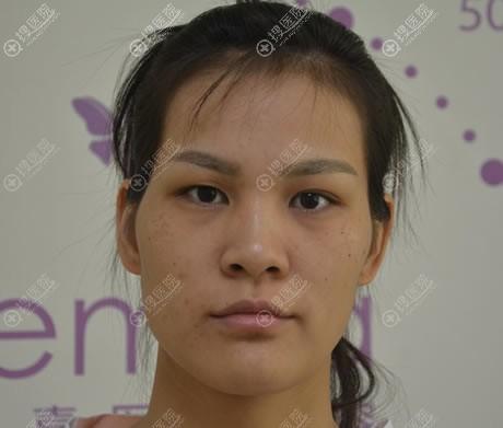 在北京禾美嘉做双眼皮和脂肪填充前