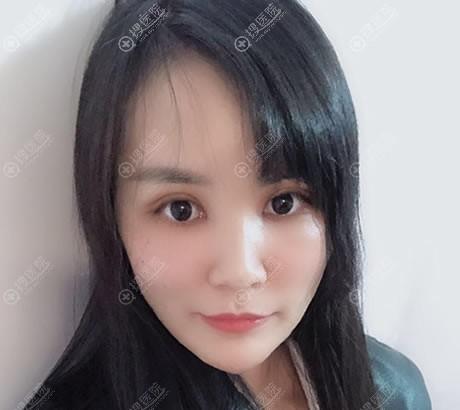 北京禾美嘉李伟民双眼皮案例