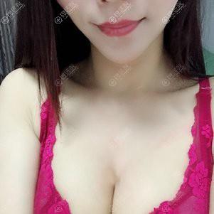 武汉壹加壹假体隆胸恢复3个月案例图
