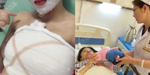 武汉壹加壹假体隆胸术后7天和病房照片