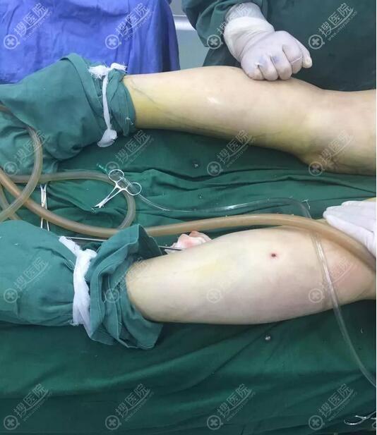 深圳南雅整形美容医院潘龙升大腿吸脂手术中