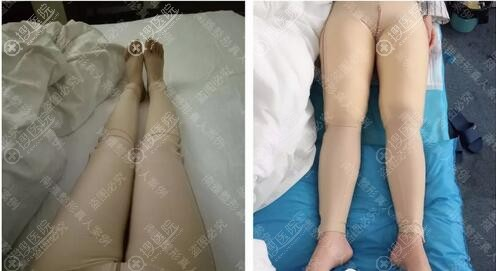 潘龙升大腿吸脂术后即刻效果
