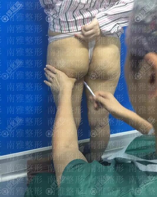 抽脂前精准定位吸脂部位