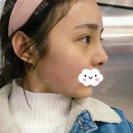 耳软骨隆鼻拆线后侧面照片