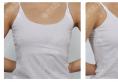 之前在苏州美贝尔找聂志宏做过隆鼻和脂肪填充这次专门来做隆胸