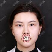 在深圳美莱做面部线雕提升分享下我的术后效果看黄海龙技术好吗