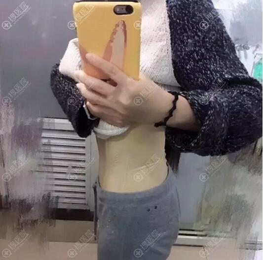 腰腹吸脂术后侧面照