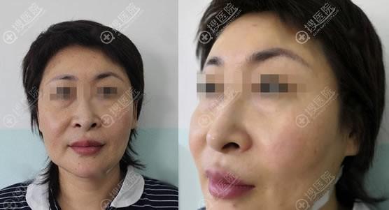在北京东方医院做小切口除皱前
