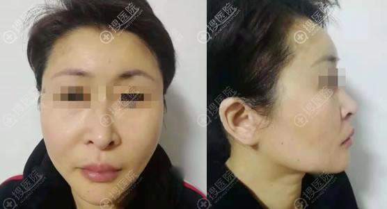 北京东方医院祝东升小切口除皱案例