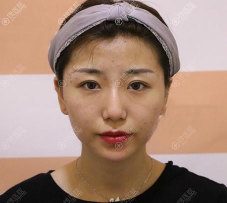 做面部脂肪填充和隆鼻手术前