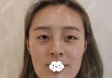 妈妈陪我面诊杭州时光胡斌医生做了双眼皮隆鼻和下颌角磨骨手术