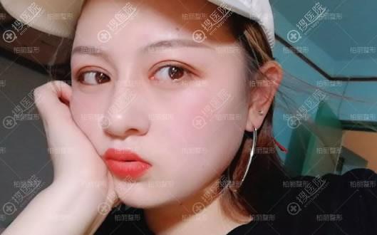 北京柏丽于波双眼皮案例2月效果