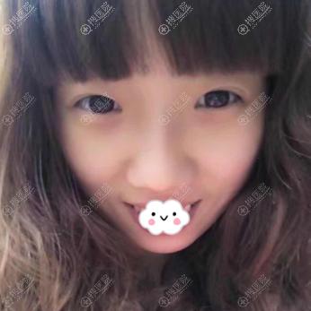 成都恒博王强双眼皮+硅胶假体隆鼻真人案例