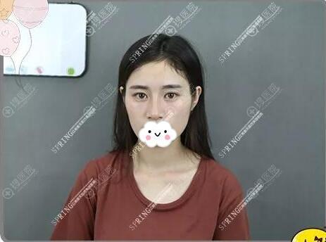 隆鼻失败手术后的样子