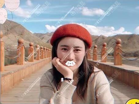深圳江南春天蓝剑雄肋软骨隆鼻修复术后效果