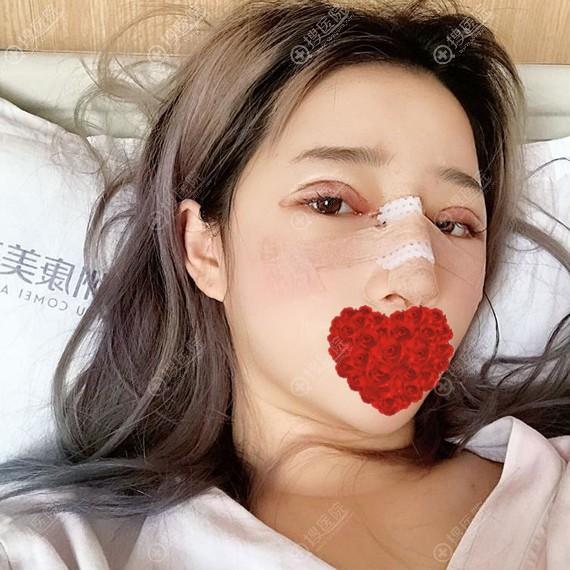 鼻综合术后3天效果