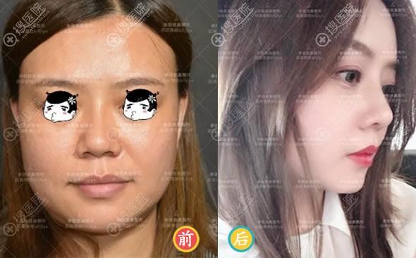 北京柏丽李劲良半肋鼻修复案例