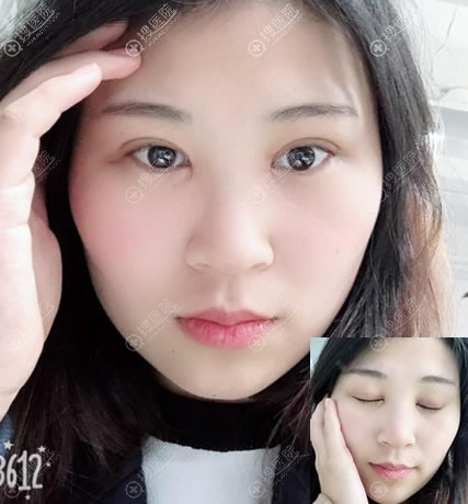 北京美莱双眼皮开眼角2月疤痕照片