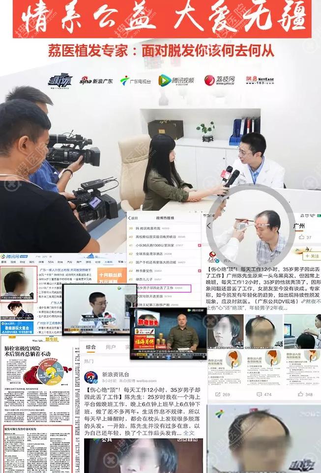 广州荔医植发医生接受电台媒体多次报道