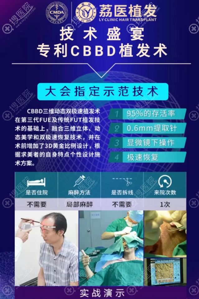 广州荔医植发技术
