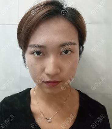 在美容院做失败的双眼皮照片