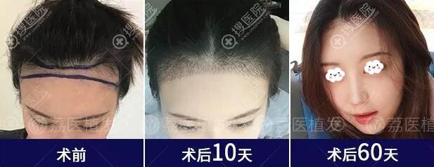 广州荔医发际线种植真人案例