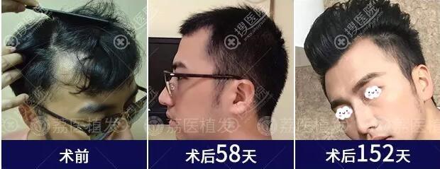 广州荔医头顶加密+额角种植真人案例