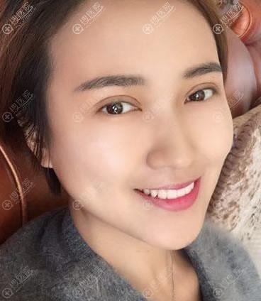 北京韩啸白永辉双眼皮修复案例