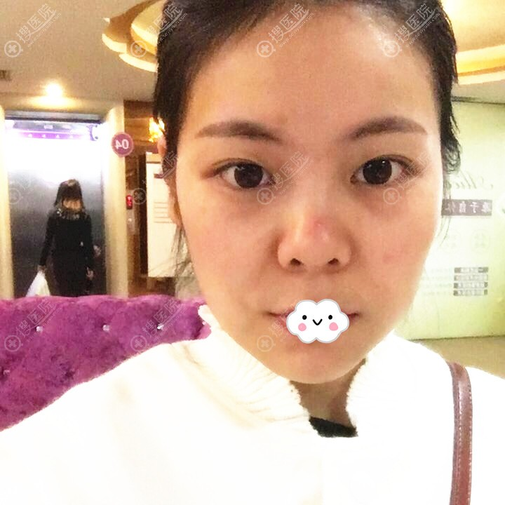 广州美恩整形美容医院沈绍勇假体隆鼻综合整形案例