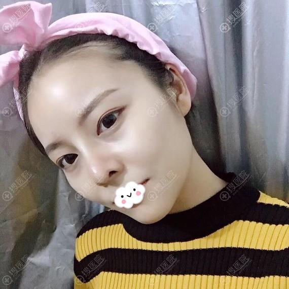 广州美恩假体隆鼻+耳软骨垫鼻尖案例