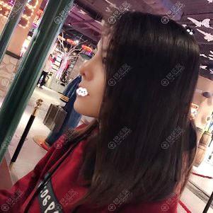 广州美恩鼻综合隆鼻术后1个月恢复图