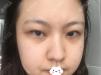 通过姜友定眼部整形价格与案例了解广州画美割双眼皮效果好吗?