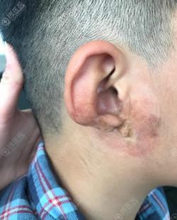 九岁男孩踏上远赴韩国普露菲耳Profile耳骨耳垂萎缩修复之路