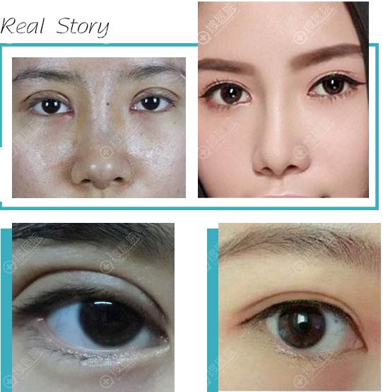杭州群英整形外科胡学庆双眼皮失败修复案例效果对比图