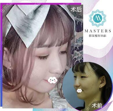 杭州群英整形外科假体隆鼻失败修复案例效果对比图
