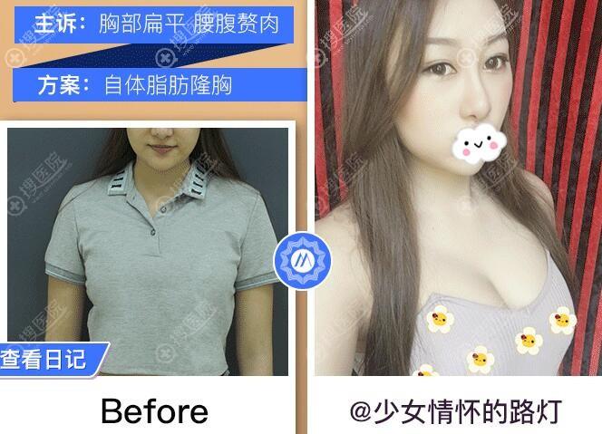 杭州群英原上海九院整形外科博士胡学庆自体脂肪隆胸效果