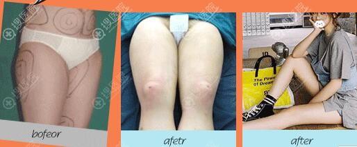 杭州群英吸脂瘦大腿案例前后效果对比图