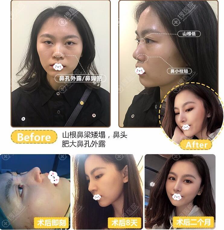广州可玫尔张球俊院长鼻综合案例恢复图