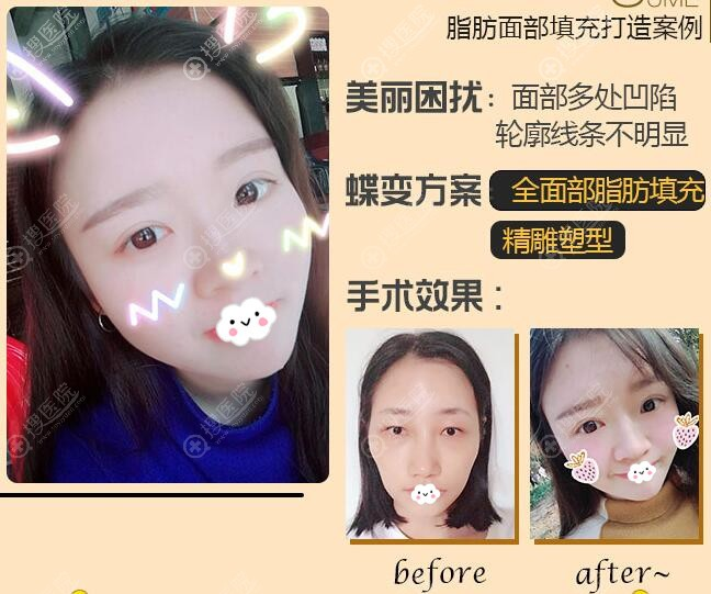 广州可玫尔自体脂肪填充全脸案例对比图