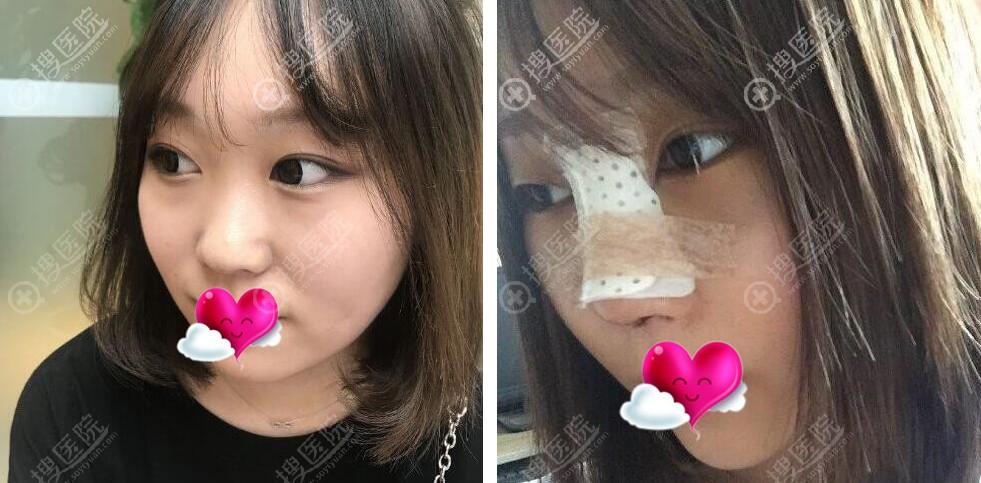 鼻综合手术前和术后3天