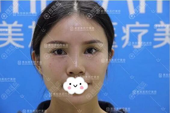 闺蜜之前假体隆鼻失败后的样子