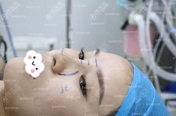 美加美周国伟教授设计的肋软骨隆鼻方案