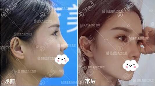 深圳美加美周国伟肋软骨隆鼻前后对比照
