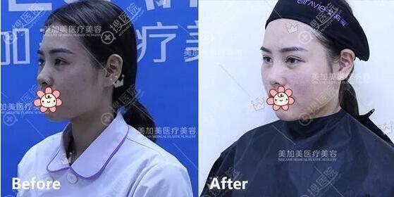 李莉玻尿酸注射苹果肌术后即刻对比
