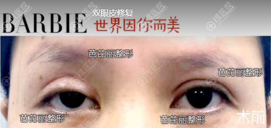 南宁芭芘丽整形双眼皮修复真人案例