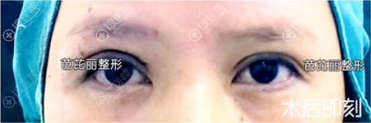 南宁芭芘丽双眼皮失败修复术后即刻效果图