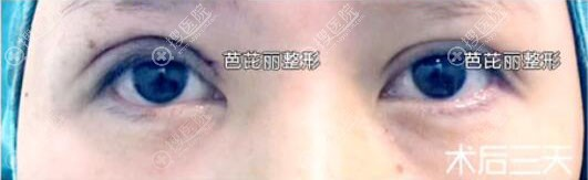 南宁双眼皮失败修复效果怎么样?南宁芭芘丽眼部修复案例