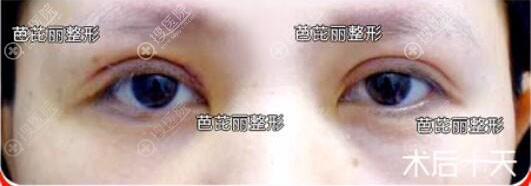 南宁芭芘丽割双眼皮效果好吗?眼修复案例术后恢复图