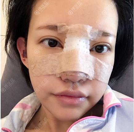 上海丽质卢九宁隆鼻案例术后自拍